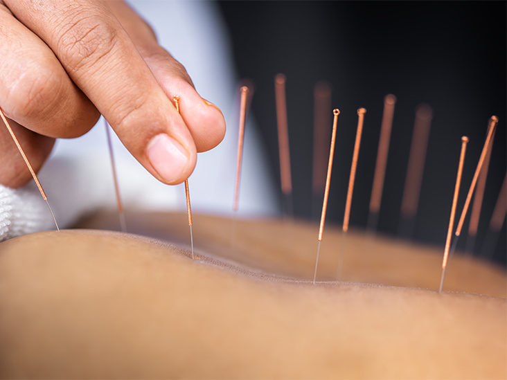 Acupuncture: How It Works, Benefits, and Results for Pain
