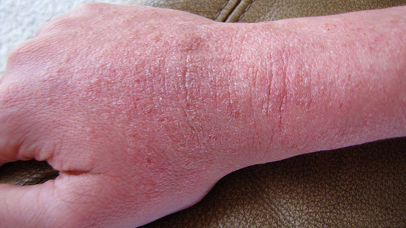 Rash 22 Common Skin Rashes Pictures Causes And Treatment