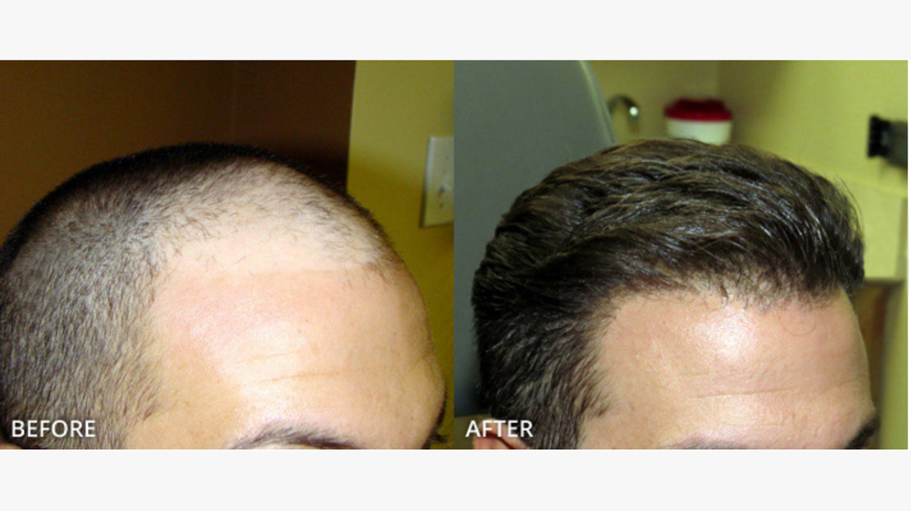 Fue Hair Transplant What To Expect Cost Pictures And More