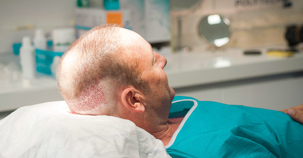 Hair Transplant on Scar: Yes It Works, Here's How