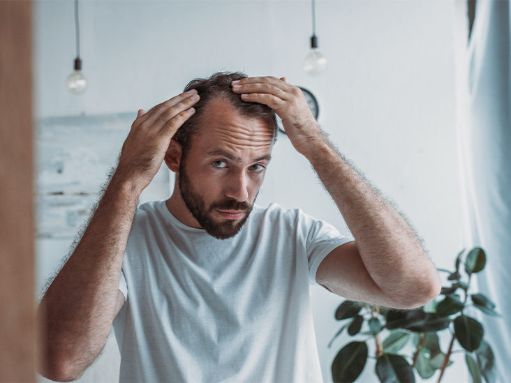 Important Factors to Choose the Best Hair Transplant Clinic in Delhi