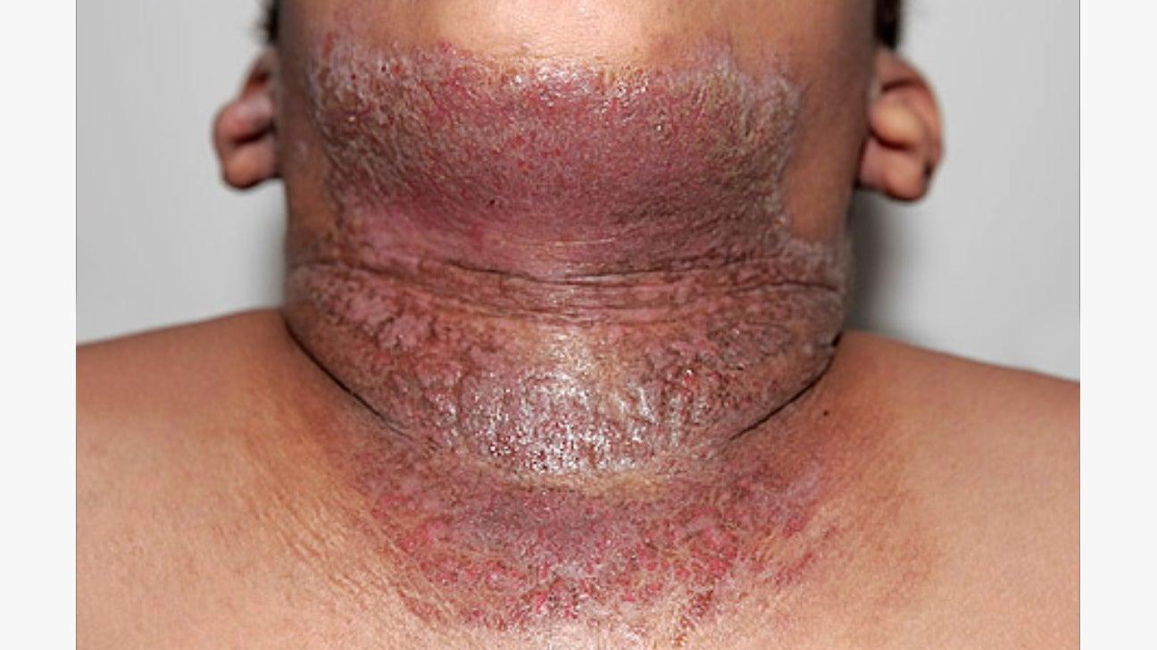 11 Rarer Skin Diseases Hidradenitis Suppurativa Morgellons More