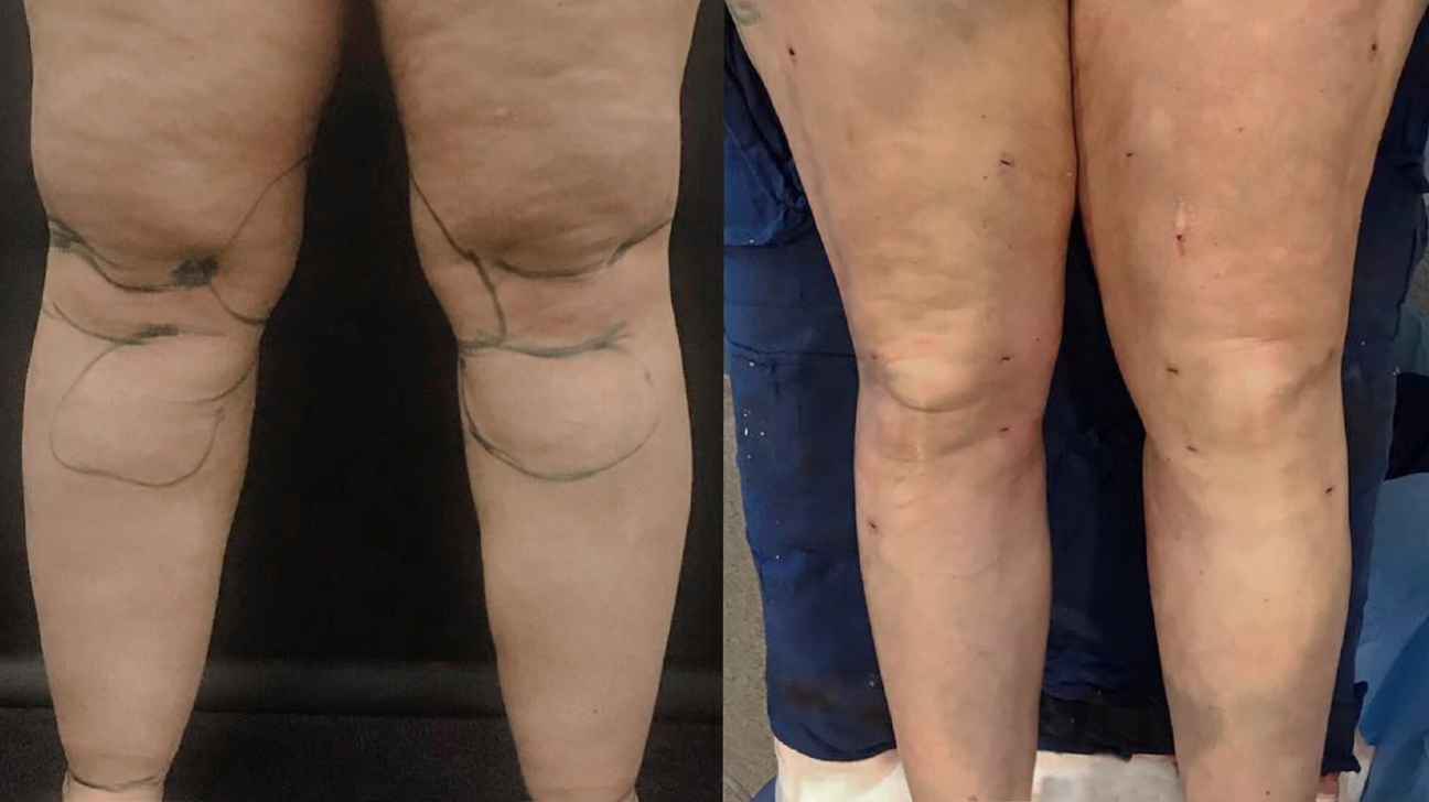 Knee Liposuction Procedure Recovery Side Effects Cost