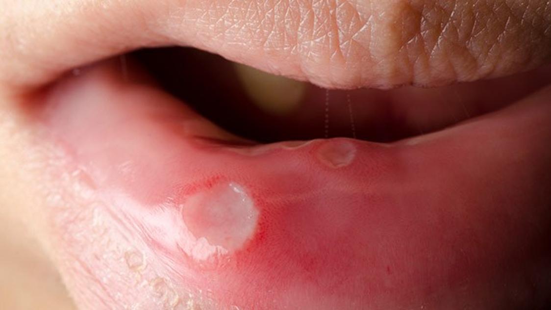 llagas en la boca por papiloma