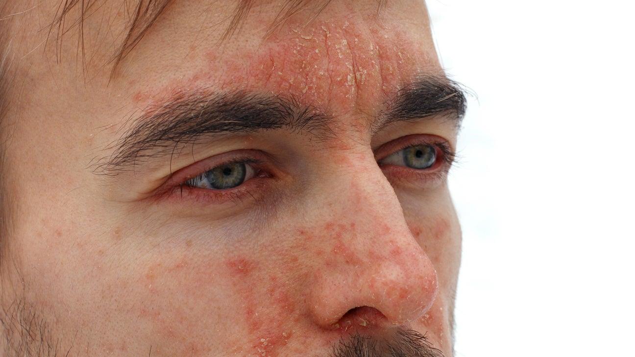 guttate psoriasis on face treatment)