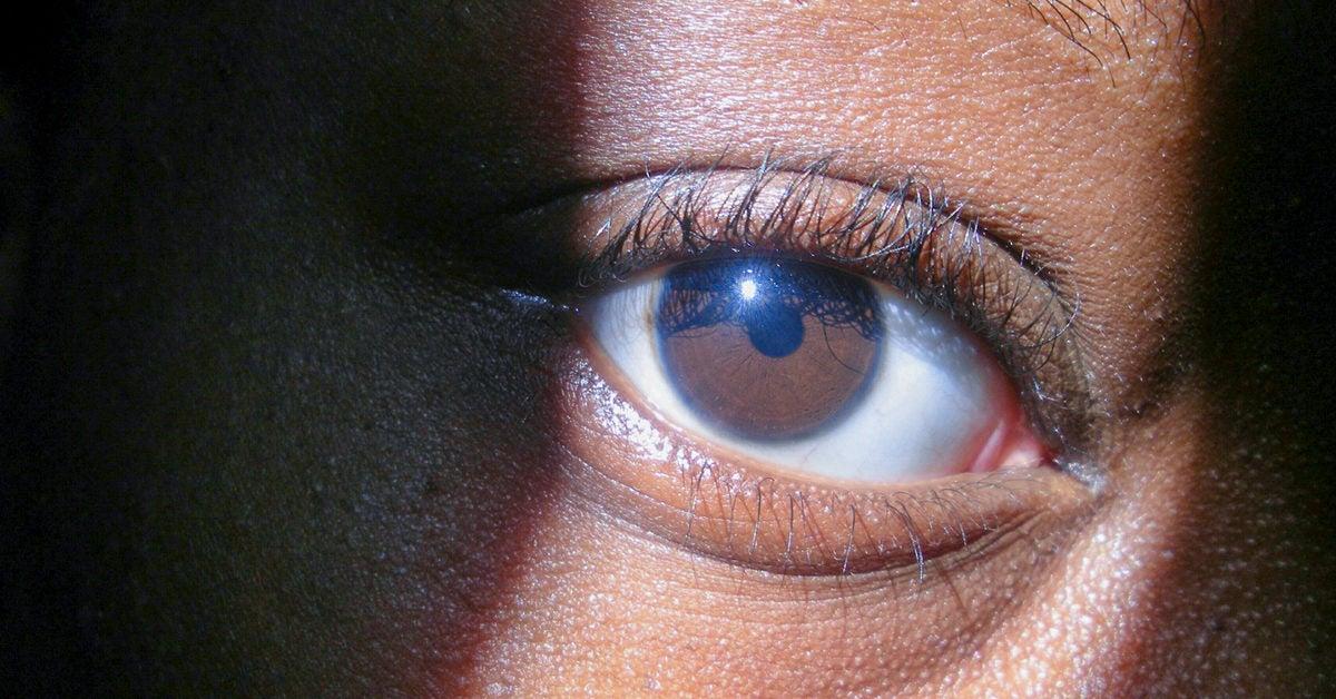 Of hazel meaning eyes the The Genetics