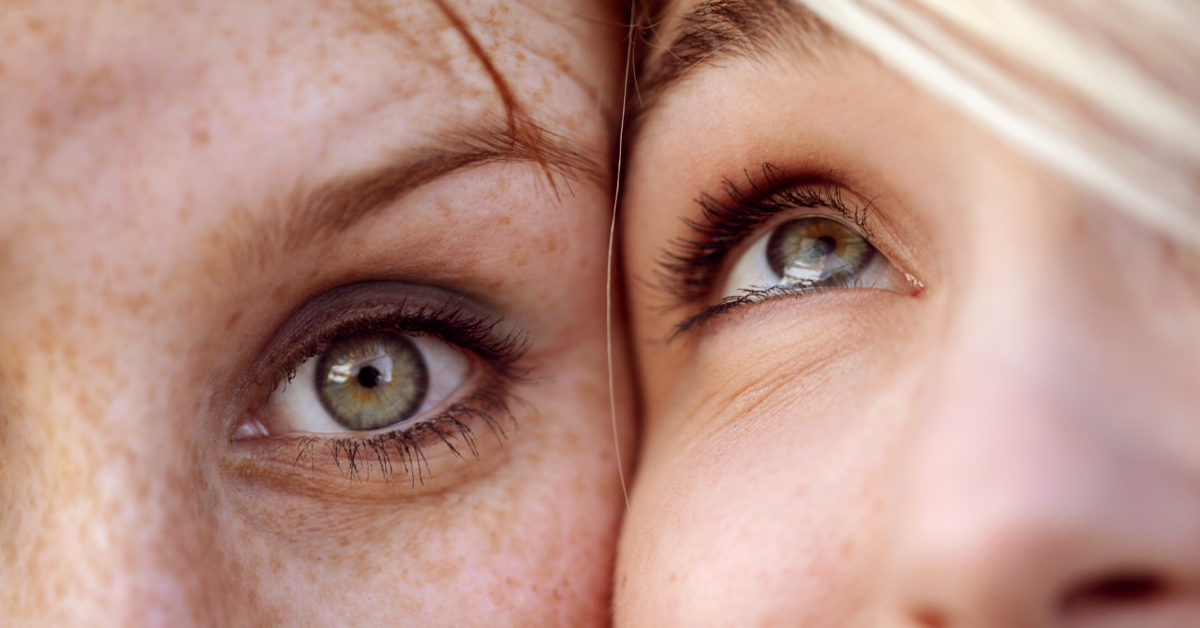 Veins Under Eyes Causes Treatment