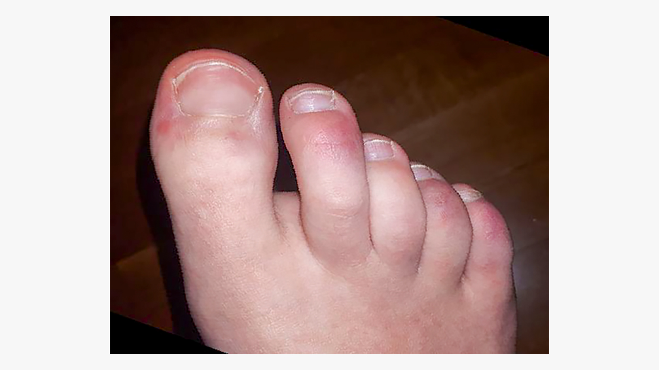COVID Toe Rash: What You Need to Know