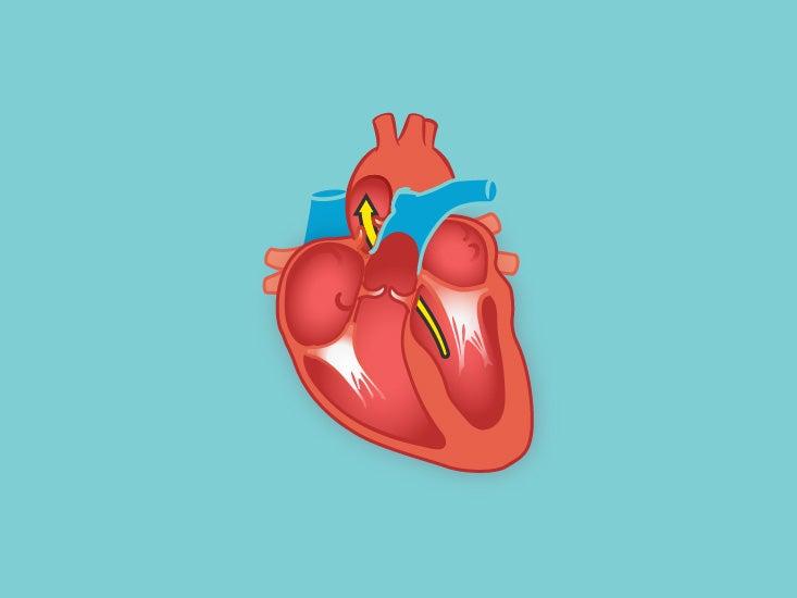 Pulmonary Trunk Anatomy, Function & Diagram | Body Maps