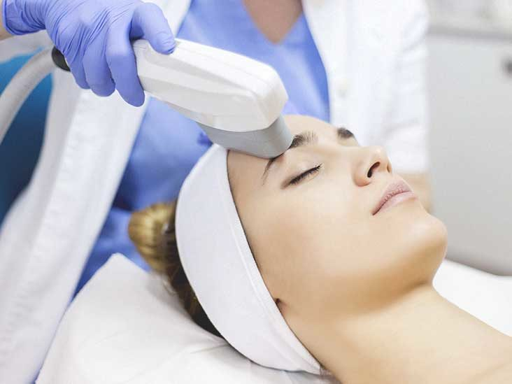 Ultherapy: Does It Work?