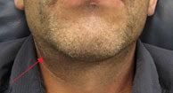 Pop gland blocked salivary Blocked Salivary