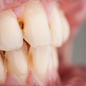 Bulimia's Effect on Teeth