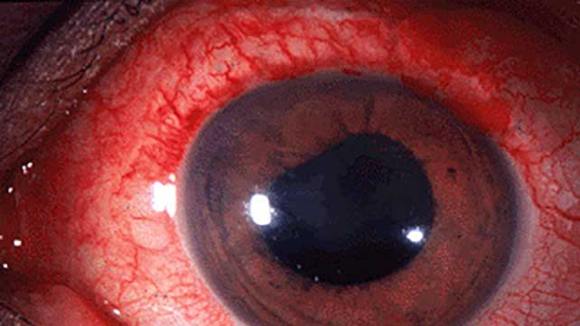 Uveitis  Causes  Symptoms  And Pictures