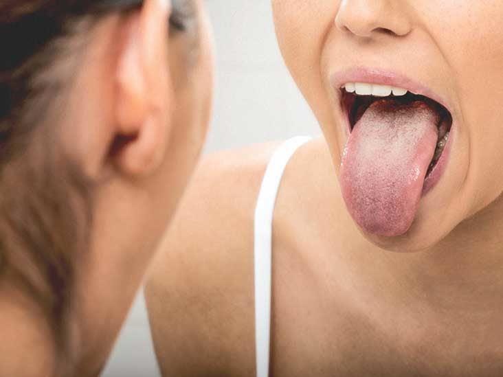 Hpv positive base of the tongue cancer. Cestodi paraziți de l homme