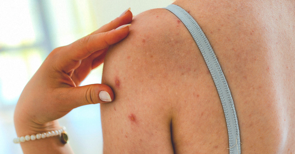 steroid acne how long does it last