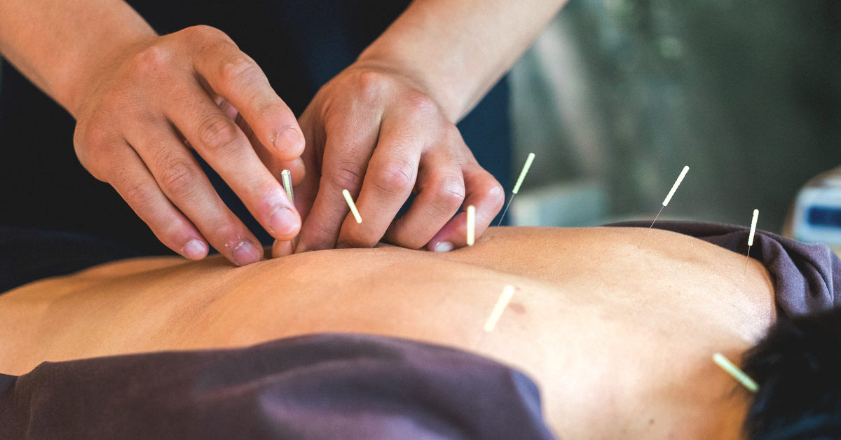 Acupuncture For Rheumatoid Arthritis Benefits And Risks