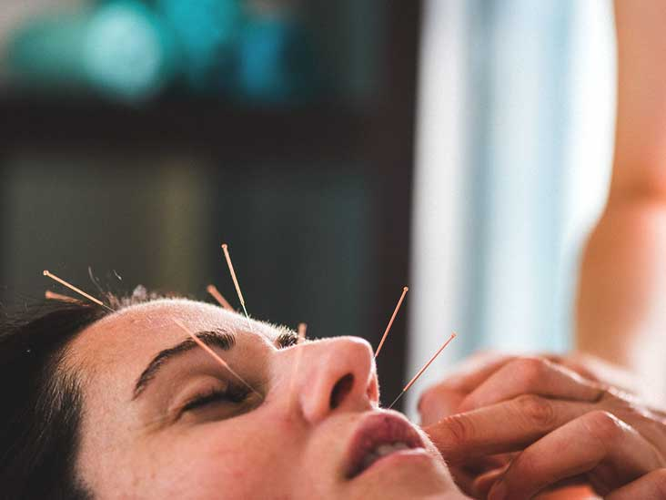 What Is Facial Acupuncture Skin Benefits Cost And Side Effects