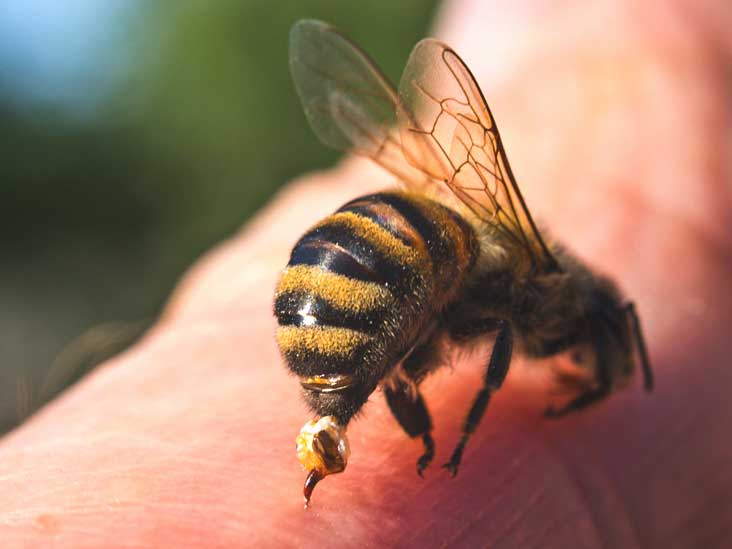 steroid injection for bee sting