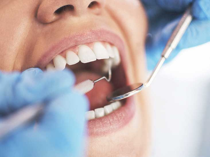 Learn and Understand the Causes, signs, And Treatment of Periodontal Diseases