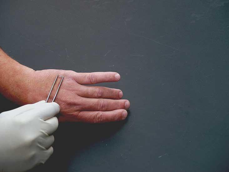warts on hands won t go away)