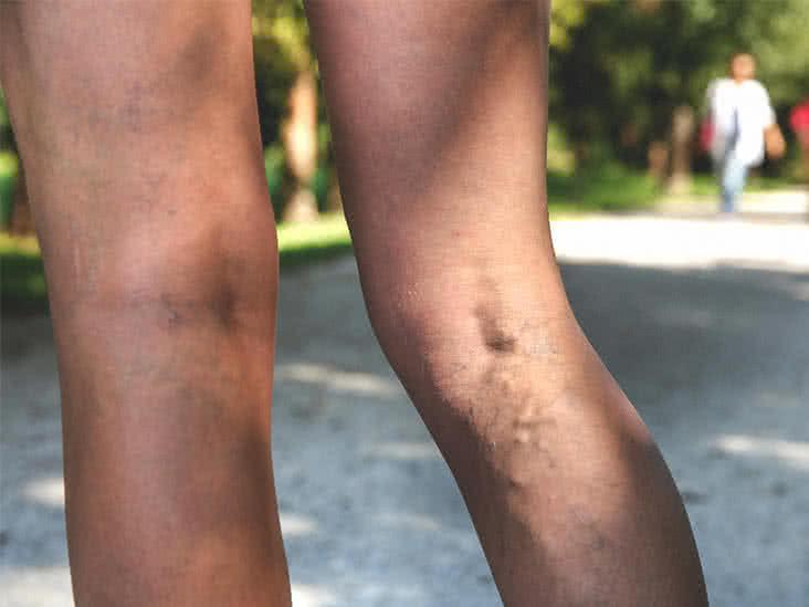 veins in back of leg