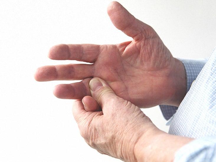 joint+pain+on+ring+finger