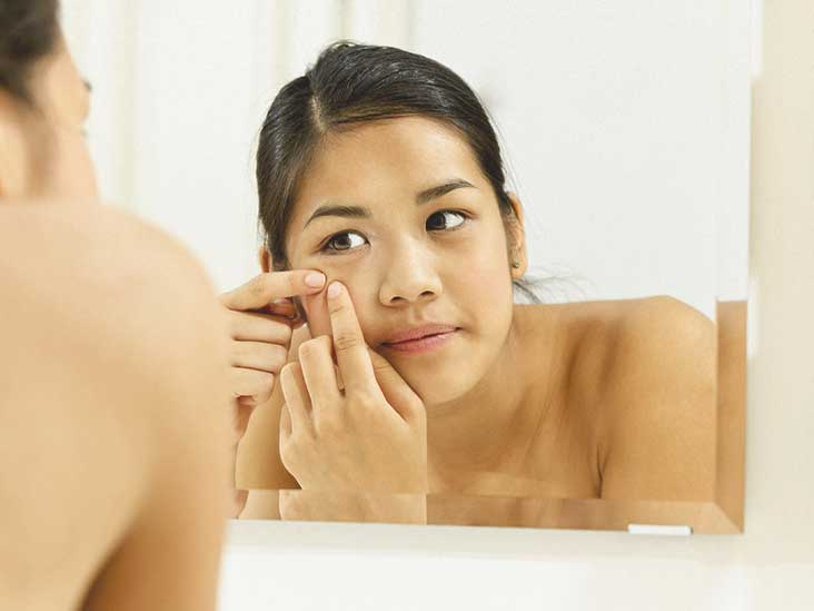 Cystic Acne Identification Causes And More