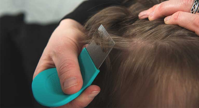 Lice Bites How To Identify And Treat, How Long Can Lice Live On Clothes And Bedding