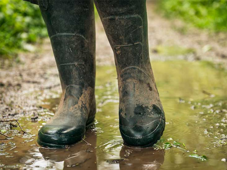 Trench Foot Symptoms Causes Pictures And Treatment