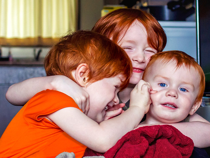 Red Hair Blue Eyes How Common Is The Genetic Combination