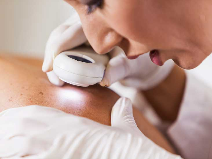 Pictures Of Melanoma Skin Changes To Look For And More