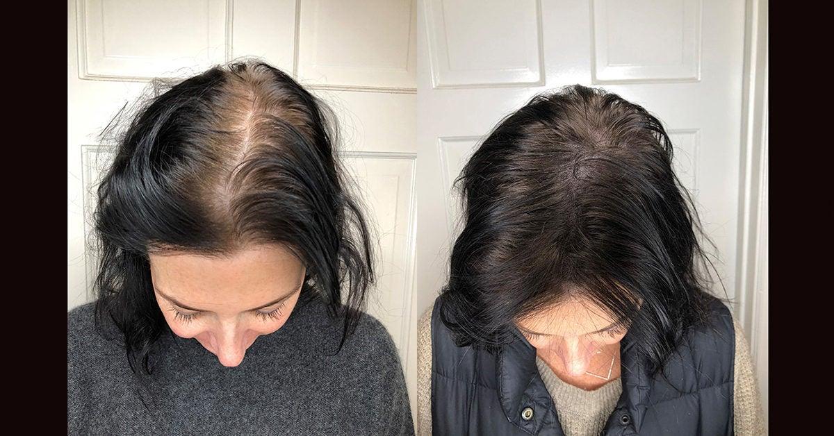 Scalp Micropigmentation Benefits Side