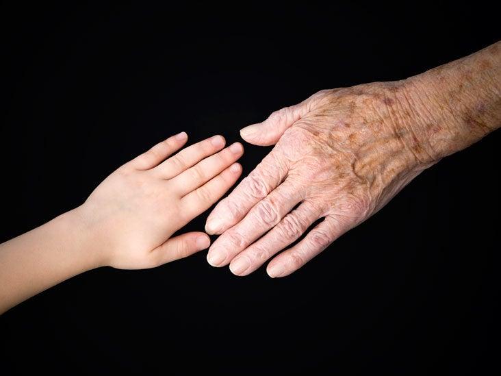 Age Spots: Causes, Symptoms & Diagnosis