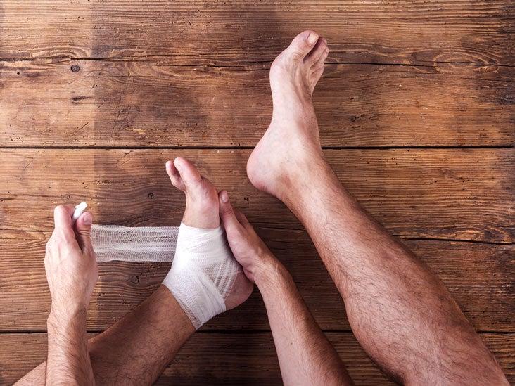 leg ulcer in Chalmette