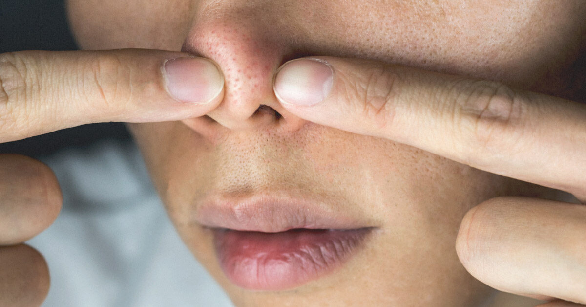 About The White Stuff That Comes Out When You Squeeze Your Nose Pores