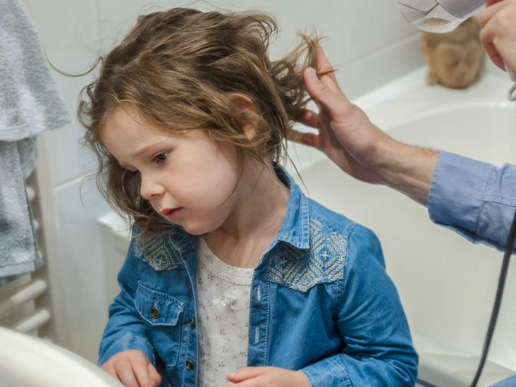 Hair Loss In Children Causes And Treatments