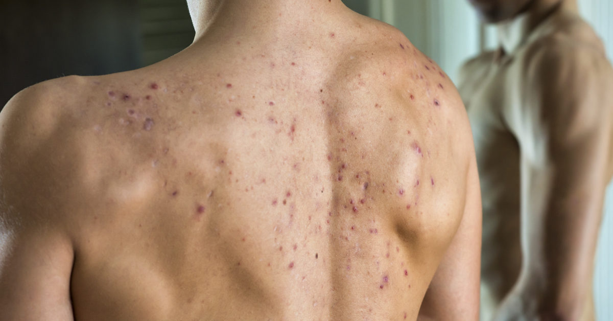 Cystic Acne On Back Causes And Treatment