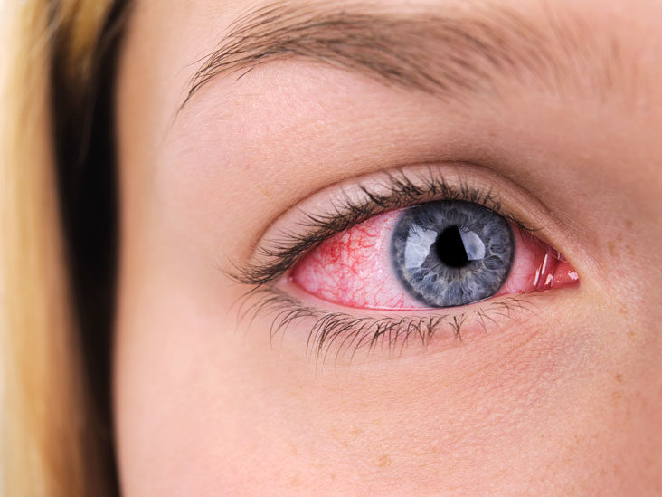 Eyelid Inflammation (Blepharitis): Causes, Symptoms, and Treatments