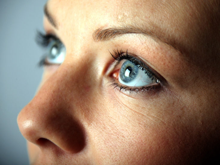 Eye Freckles Causes Symptoms Complications And Treatments
