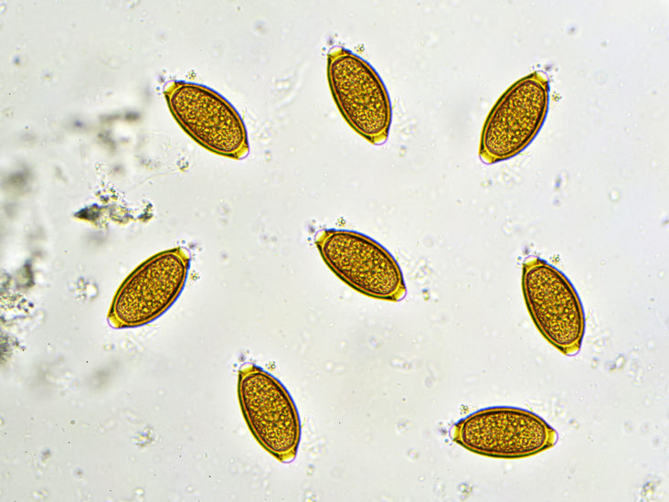 Ascaris pinworm paraziták