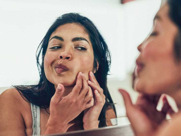 Adult Acne Causes And Treatment Options