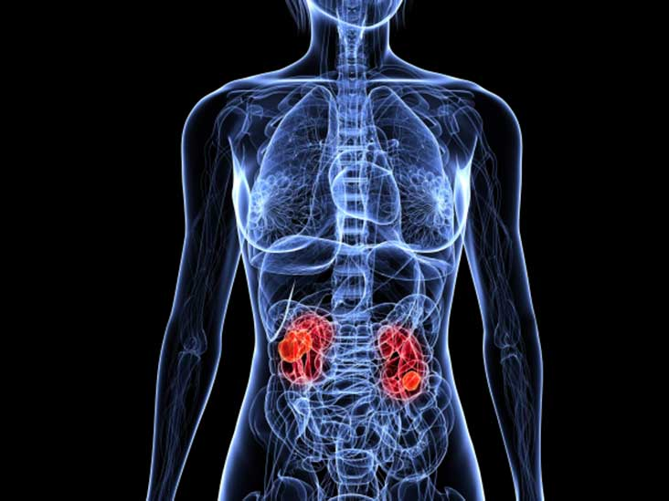 Understanding The Spread Metastatic Renal Cell Carcinoma