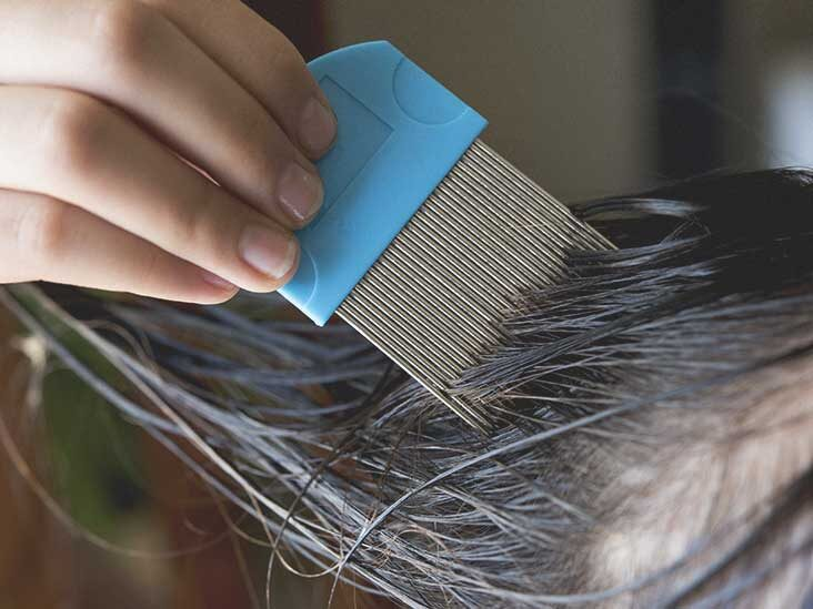 How Long Do Lice Live Discover The, How Long Can Lice Live On Clothes And Bedding