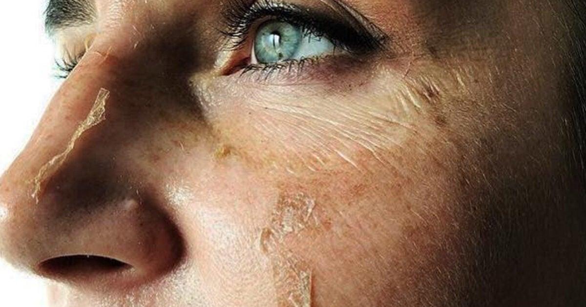peels for sensitive skin