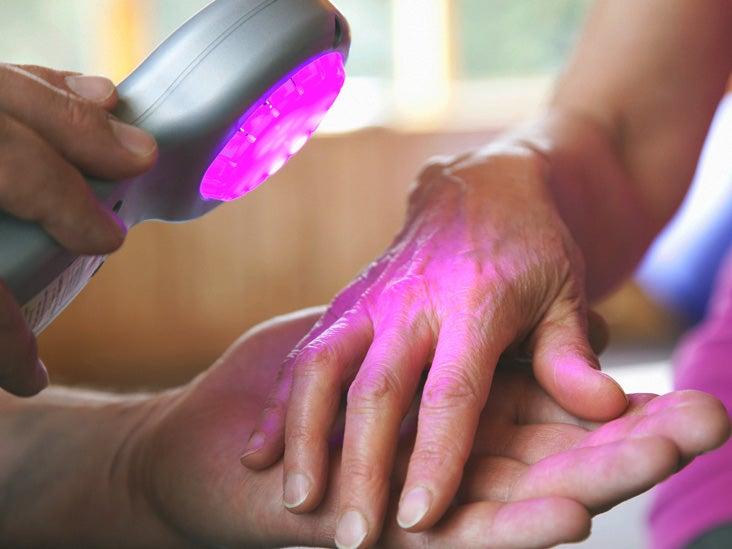 Laser Treatment of Psoriasis | Kozmetológiai, Bőrgyógyászati és Esztétikai Lézercentrum