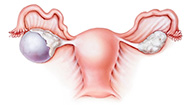 Cysts And Ovarian Cancer