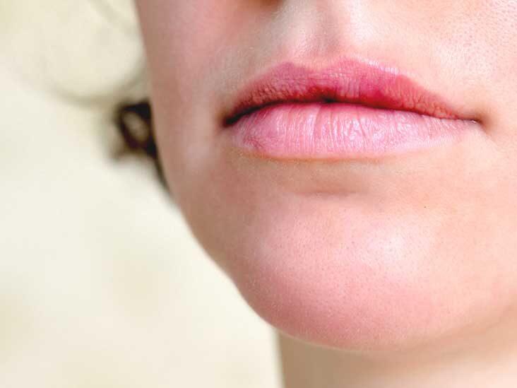 hpv lip removal