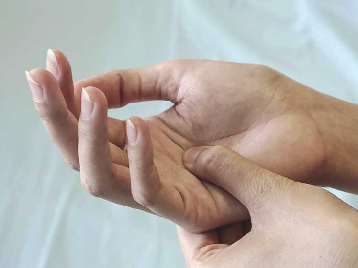 What Is The Rheumatoid Arthritis Severity Scale