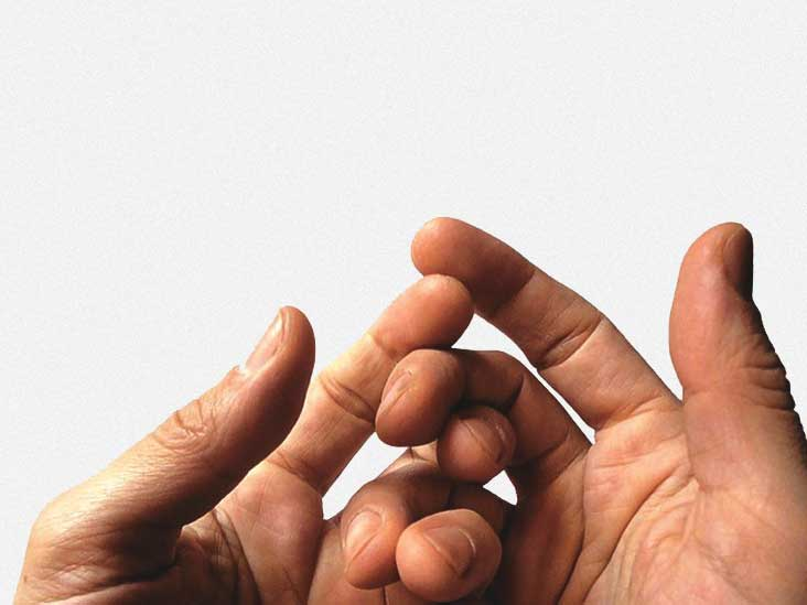 Swollen Hands  Exercise  Other Causes  And Treatment