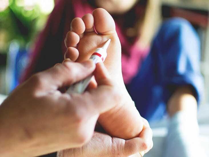 foot wart black spots